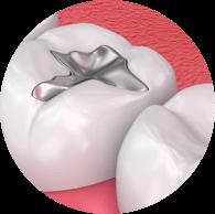 Fillings - Haddenham Dental Clinic