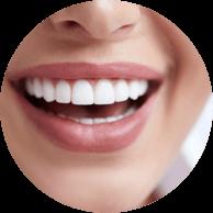 Veneers - Haddenham Dental Clinic