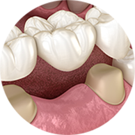 Dental Bridges - Haddenham Dental Clinic