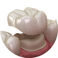 Dental Crowns - Haddenham Dental Clinic